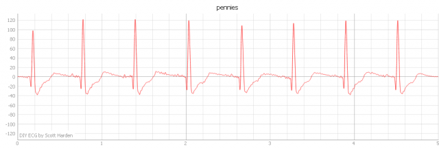 this ECG was captures using penny electrodes